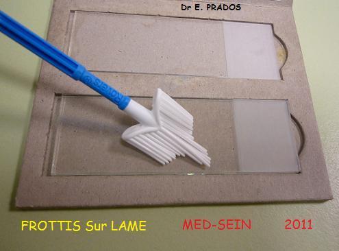 Frottis Sur lame avec spatule d'Ayre / Med-sein / Dr E. PRADOS / 2011