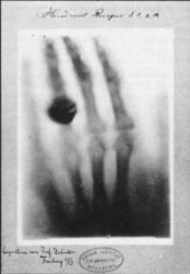 la main de Berta Röntgen