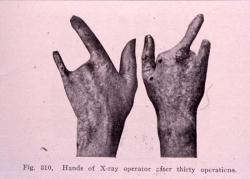 Mains d'un praticien après avoir subi 30 opérations
